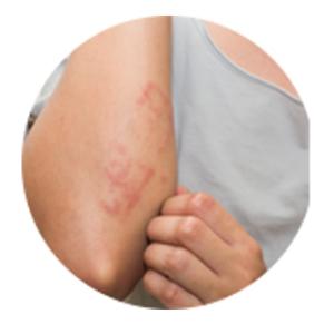 ImunoPure, nezeljeni efekti, rezultati